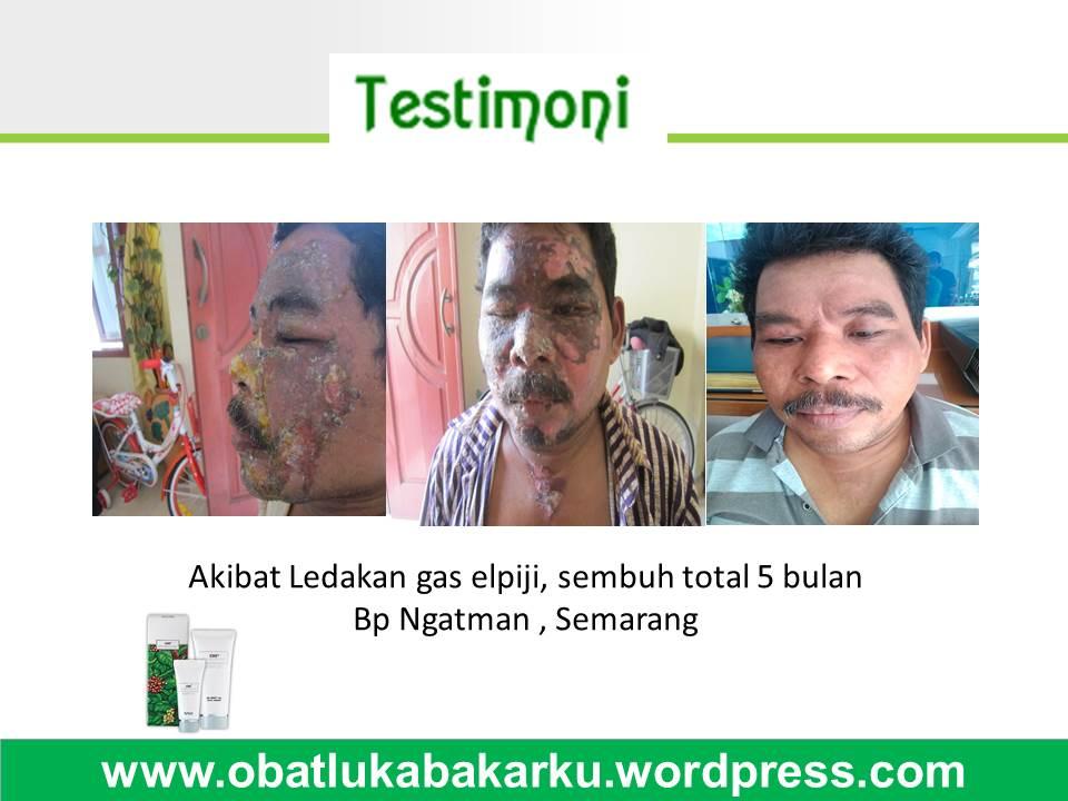 Testimoni Luka Bakar